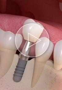 Odbudowa pojedynczego zęba na implancie