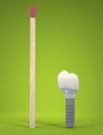 Implant stomatologiczny w skali 1:1, w porównaniu do zapałki.